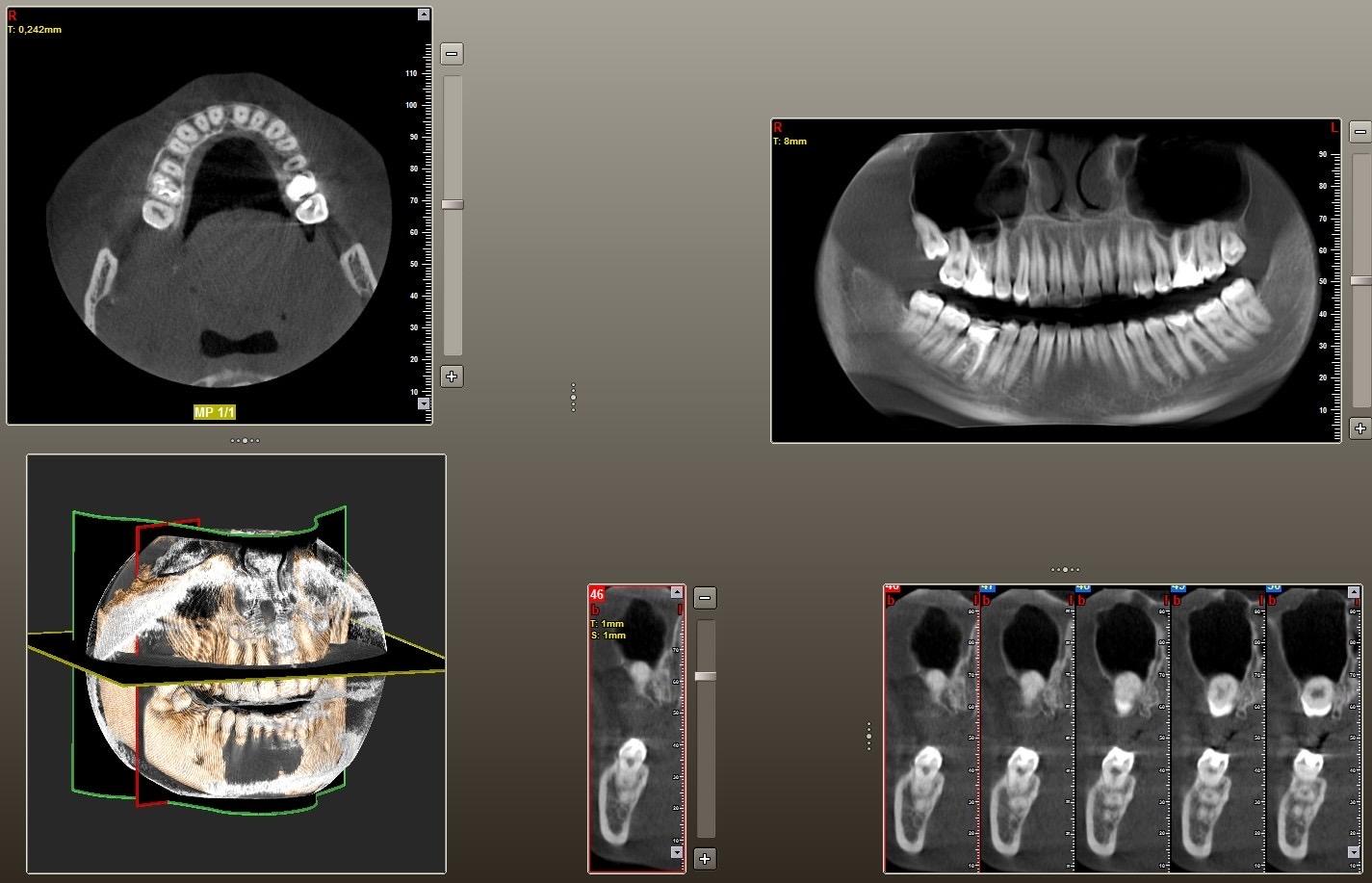 Диагностика зубов фото