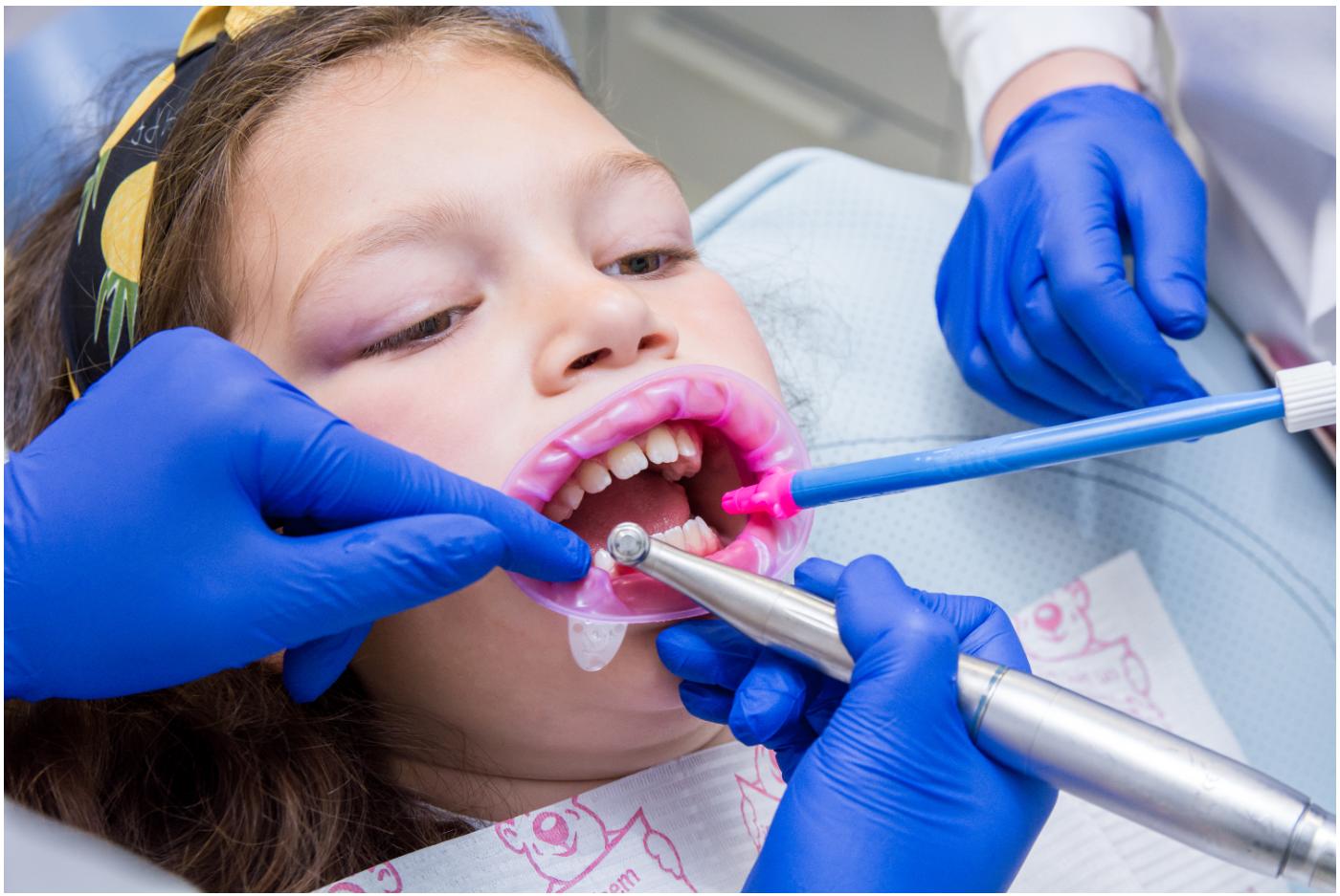 Удаление молочных зубов picture