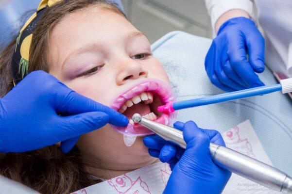 Чистка зубов в Одессе