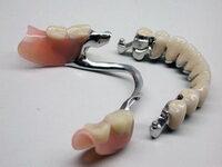 Съемное протезирование зубов picture