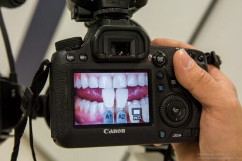 Реставрация зубов в Одессе