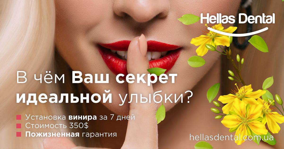 Ваш секрет идеальной улыбки? Виниры в Одессе. thumbnail