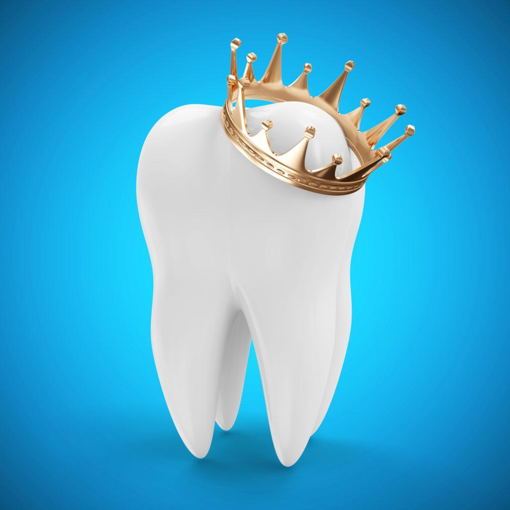 Коронация зуба, как сохранение его жизни thumbnail