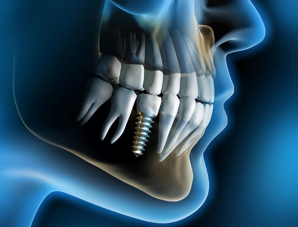 Зубные импланты в Одессе thumbnail